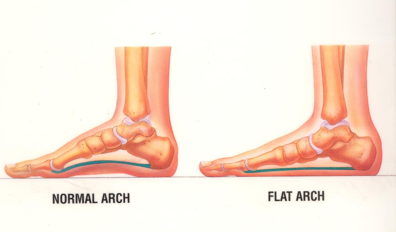 normal_foot