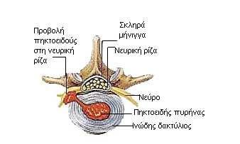 diskokili1